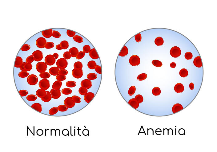 Esquema de la condición de anemia en la que ha disminuido la cantidad de glóbulos rojos circulantes.