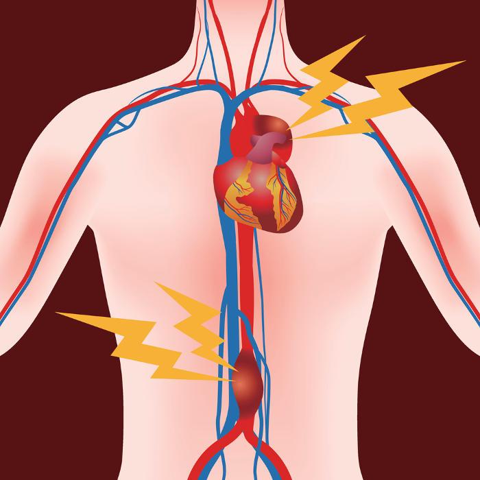 Reconstrucción gráfica simplificada de la anatomía subyacente a los dos tipos de aneurismas aórticos.