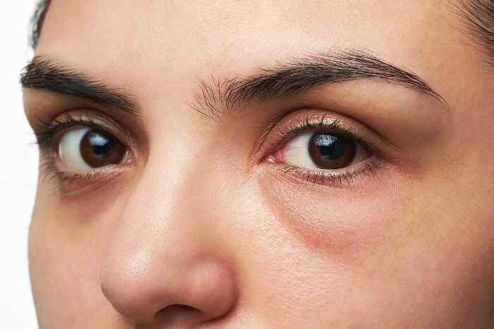 Cerca de ojos femeninos con bolsas debajo de los ojos