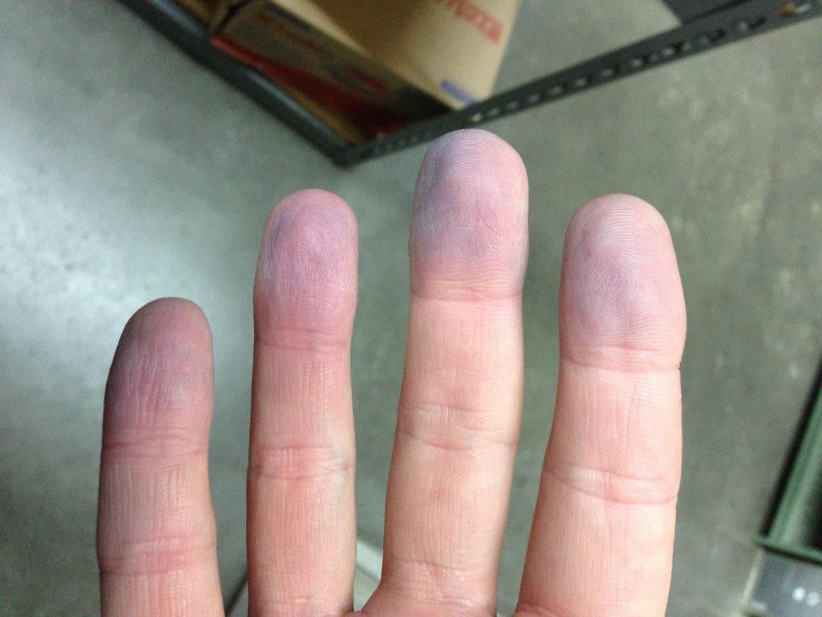 Cianosis de las manos
