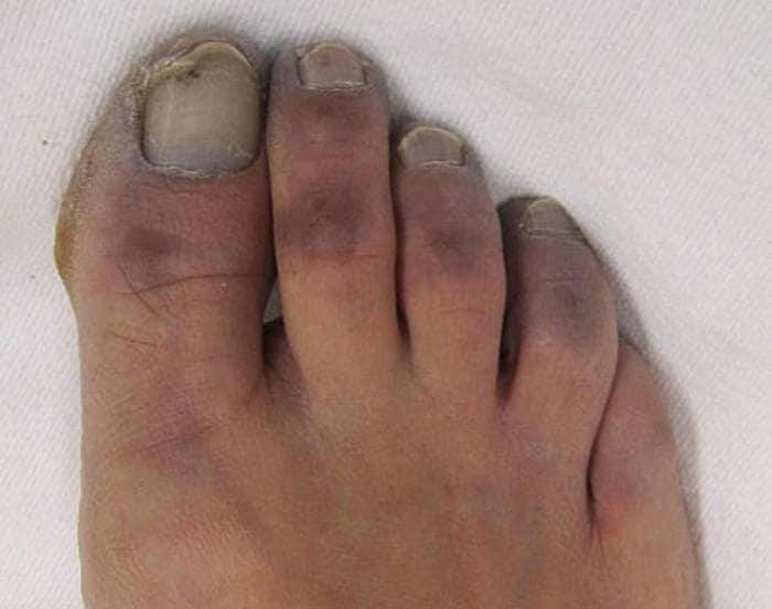 Cianosis en los dedos de los pies