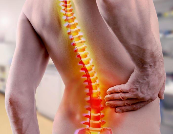 Hombre tocando su espalda baja debido al dolor debido a la espondilitis anquilosante