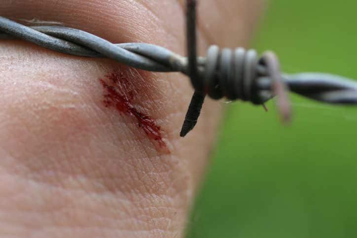 Imagen de una herida en la mano provocada por un alambre de púas.