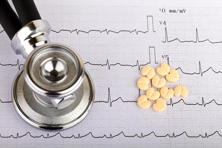 Trazo de un electrocardiograma, apoyado por un estetoscopio y unas tabletas