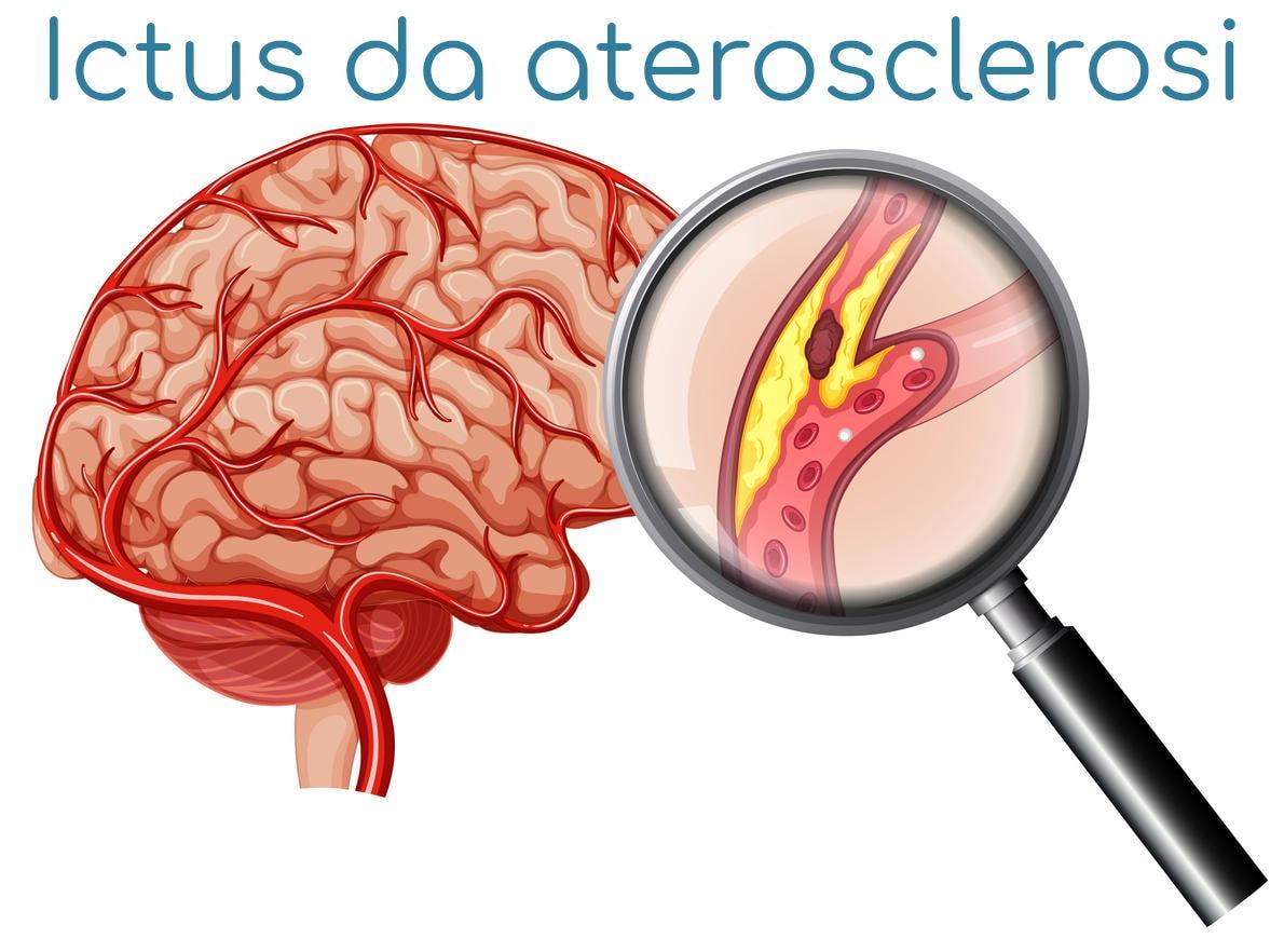 Simplificación del mecanismo subyacente al accidente cerebrovascular isquémico.