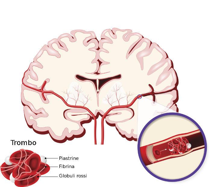 Ejemplo gráfico de isquemia cerebral
