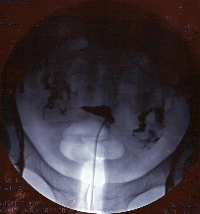 Resultado de una histerosalpingografía