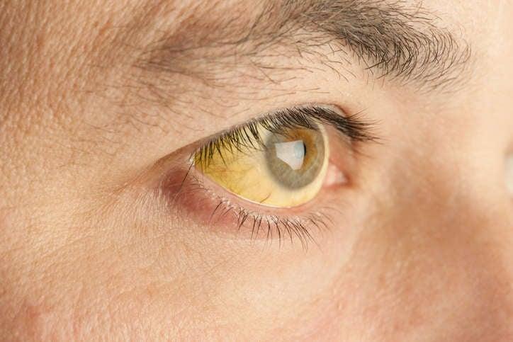 Primero, un ojo con esclerótica amarilla, síntoma típico de ictericia.