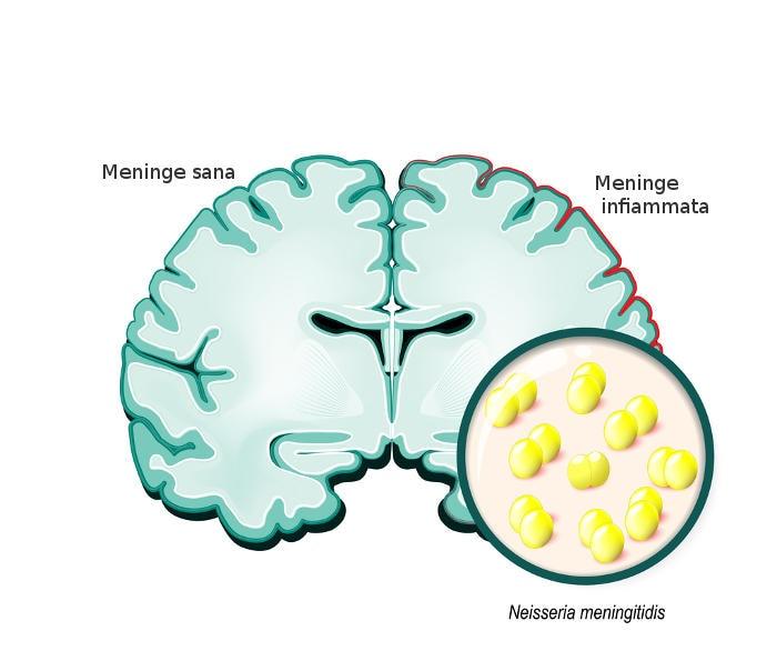 Representación gráfica de la inflamación de las meninges en la base de la meningitis.