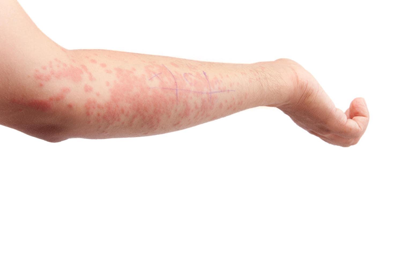 Urticaria en un brazo
