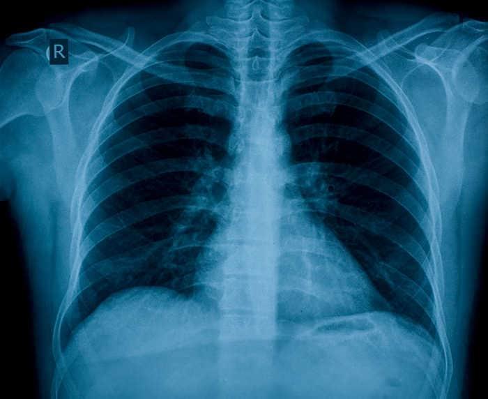 Resultado de una radiografía de tórax