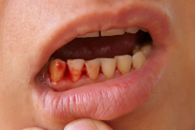 Sangre en la boca