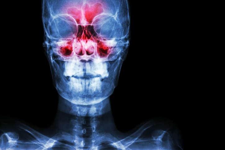 Radiografía modificada por computadora para visualizar las áreas típicas de dolor en los senos nasales (pómulos, nariz, frente).