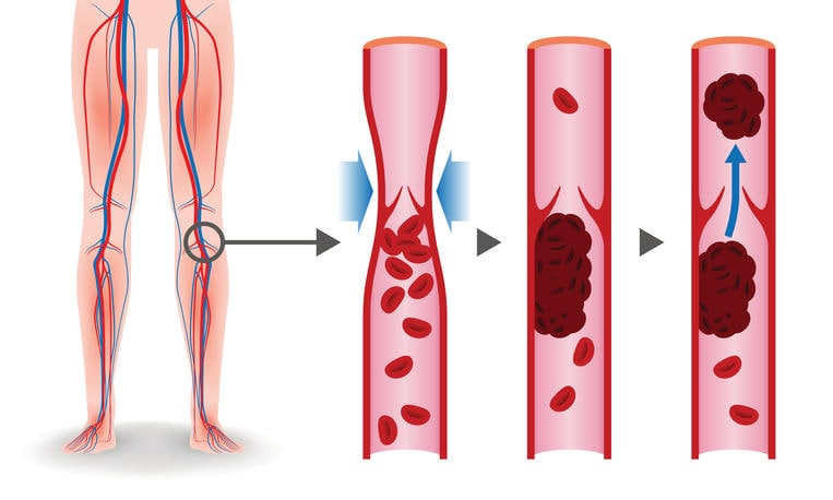 Esquema gráfico de la trombosis venosa profunda