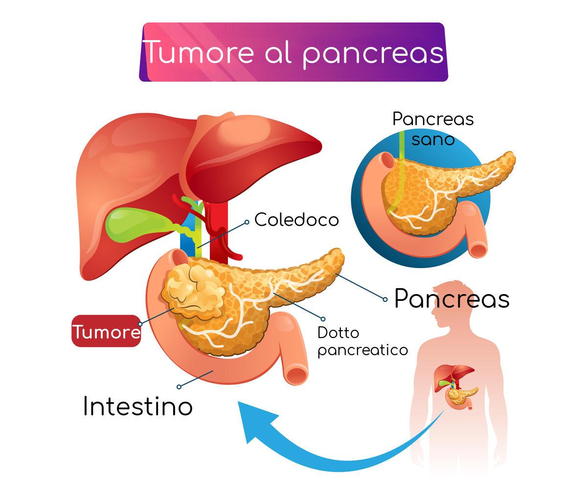 Ejemplificación de la anatomía del cáncer de páncreas