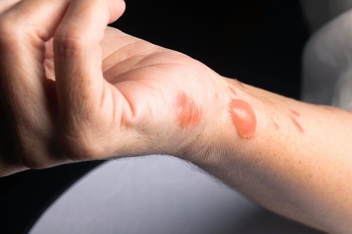 Fotografía de una quemadura de segundo grado en la mano.
